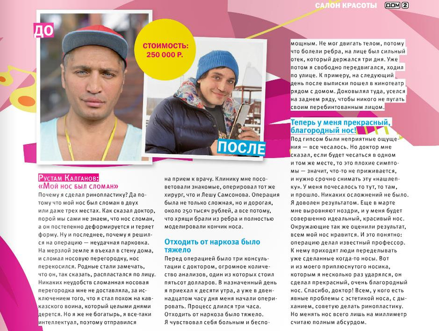 Рустам Калганов. До и После - стоимость 250 тысяч