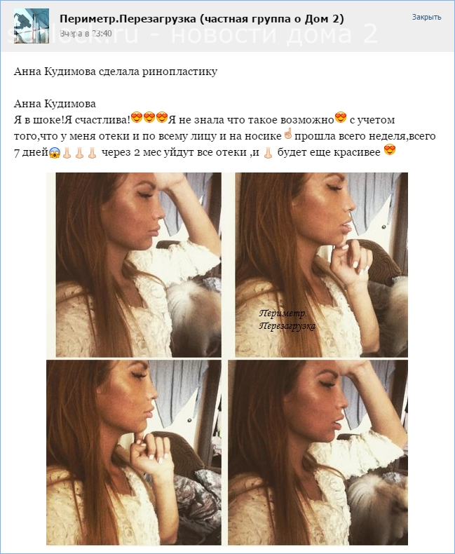 Анна Кудимова сделала ринопластику